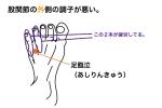 バレエ 股関節 外側