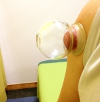 吸い玉治療