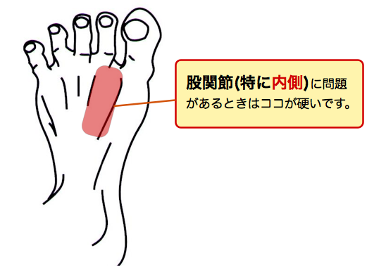 股関節内側に問題があるときはこの辺りが硬いです