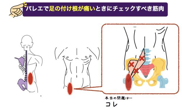 バレエで足の付け根が痛い時にチェックすべき筋肉 腸腰筋