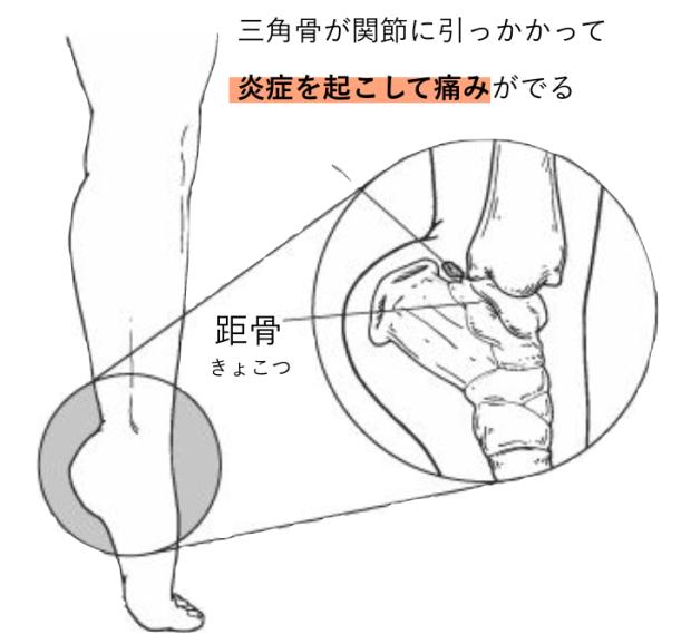 バレエ 三角骨障害