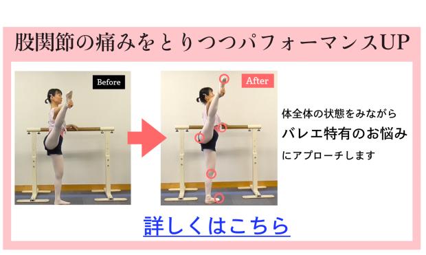 バレエ 股関節