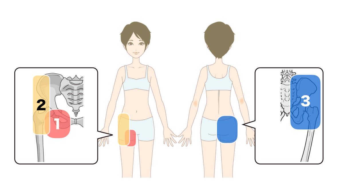 バレエで足の付け根が痛いときのタイプ別・傾向と対策