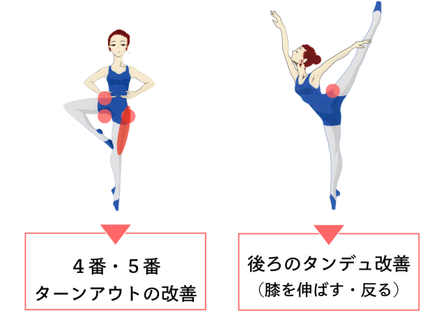 バレエ 足の付け根痛い 対策
