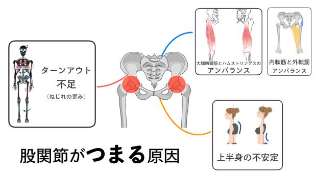 股関節がつまる原因