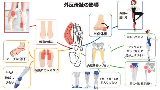 バレエ 外反母趾 影響
