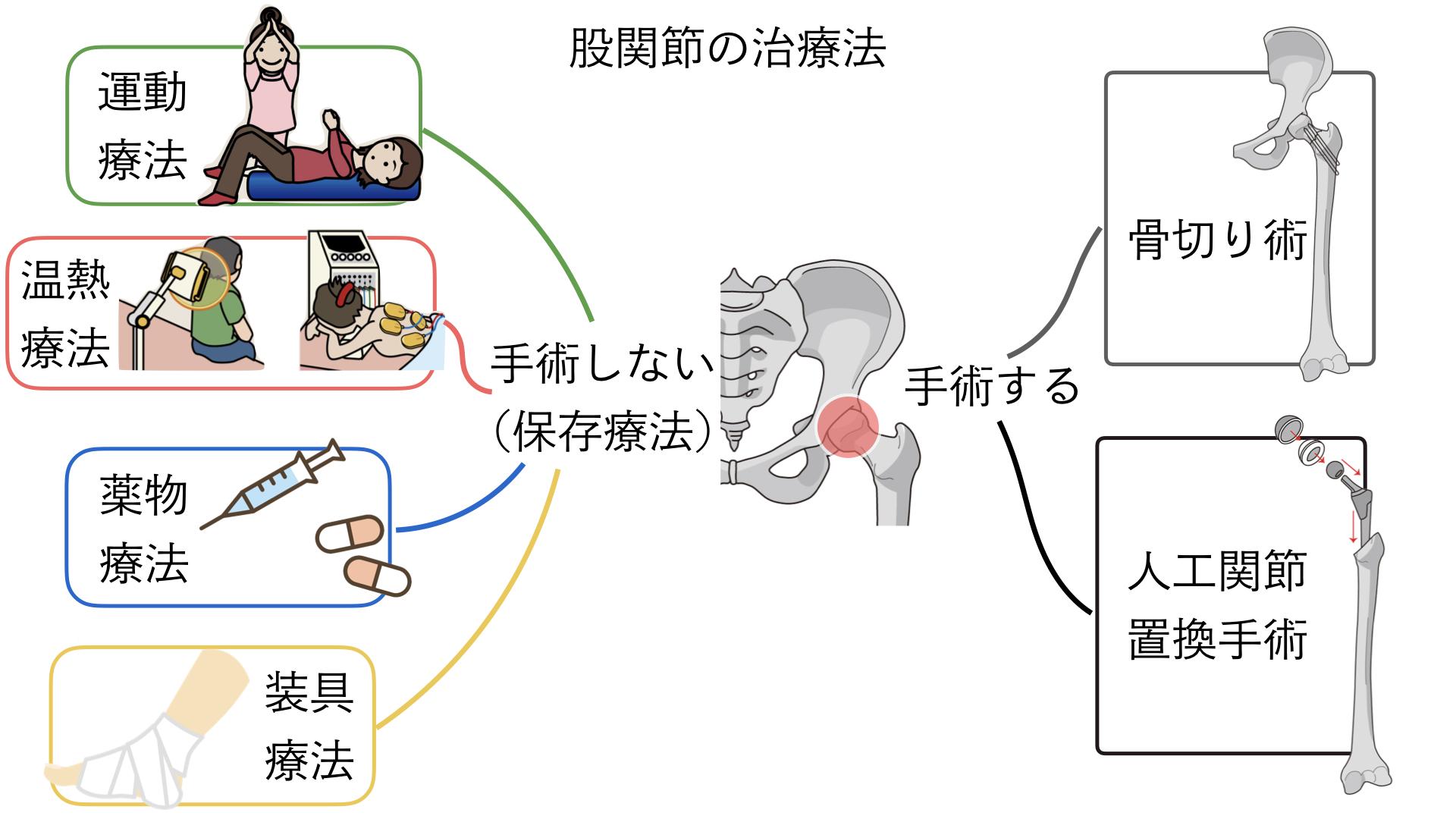 股関節 痛み 治療法 整形外科