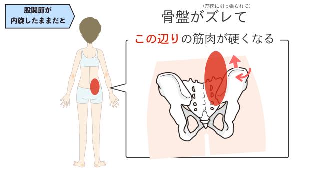 股関節 内旋 腰痛